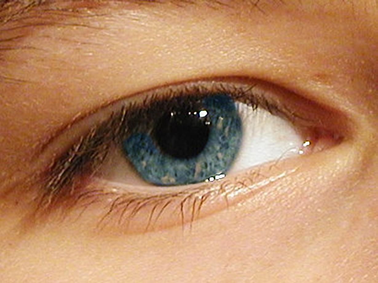 Someone's eye, yesterday